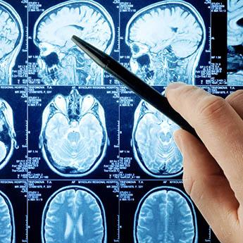 Neurologia em Natal - Clínica Médica O Doutor